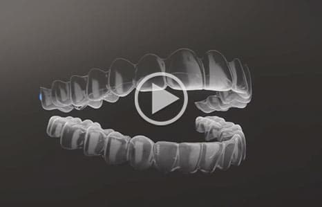 Invisalign Dr. W. Gray Grieve Orthodontics